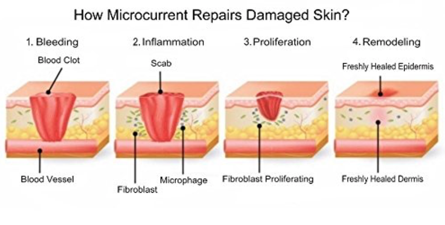 What is microcurrent therapy? 3