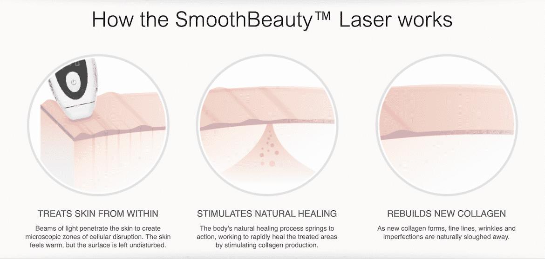 Tria Beauty Skincare Renu Laser 4