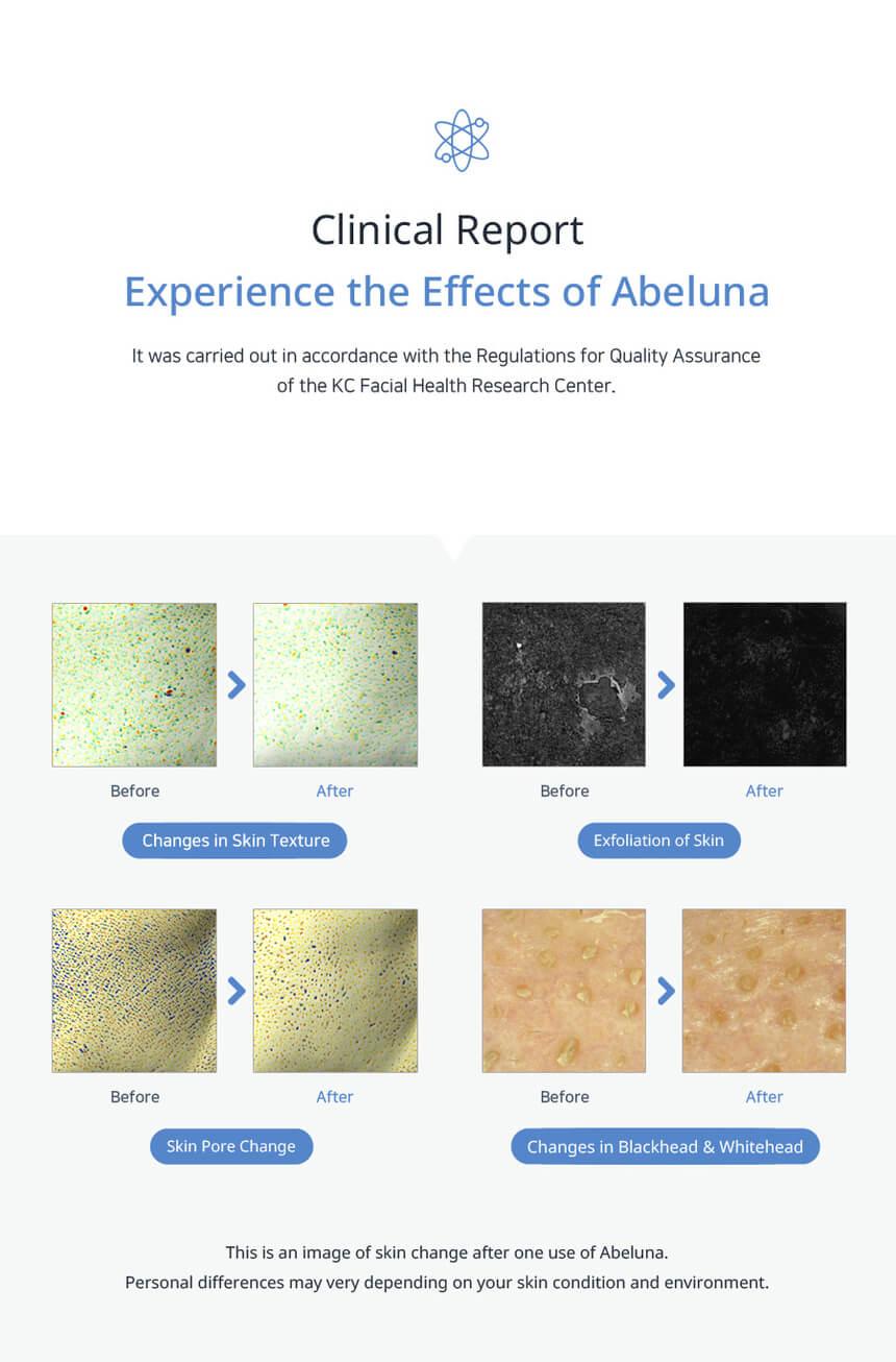 Abeluna additional mask packs 13